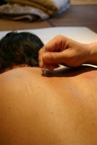 鍼灸 (9) (Small)