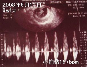 20080611胎児2