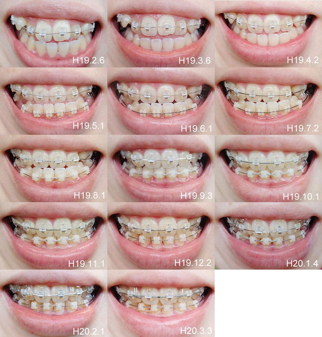 美女の歯並び投稿画像