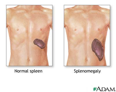 splenomegaly.jpg