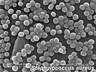 staphylococcus-aureus.jpg
