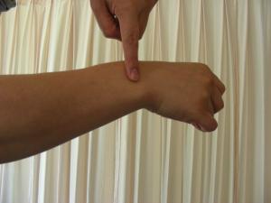 尺側手根伸筋腱