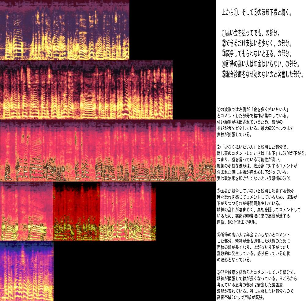 竹中の波形