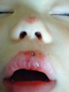 歯までいかなくて良かった~。