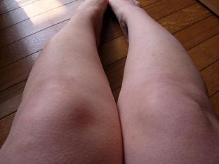膝下3回目 1日後