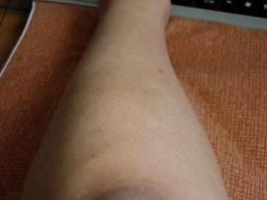 膝下3回目 34日後