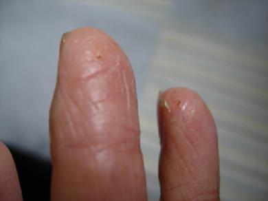 2008529 私の指