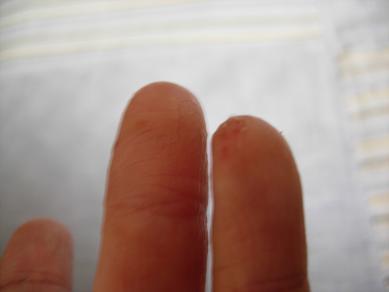 2008612 私の指