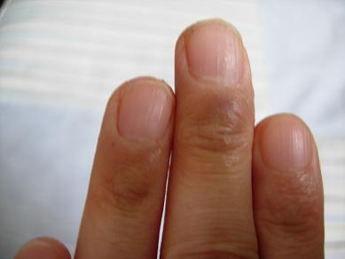 2008612 私の指の甲