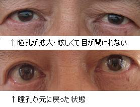 瞳孔が拡大と通常の瞳孔