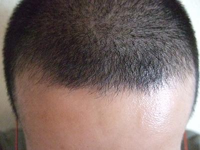 頭皮 6ヶ月目